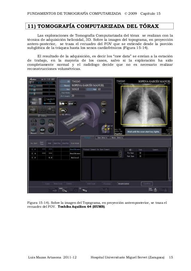 toshiba ct scanner workstation manual
